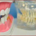 Зубные протезы и другие конструкции: уход за зубами в пожилом возрасте